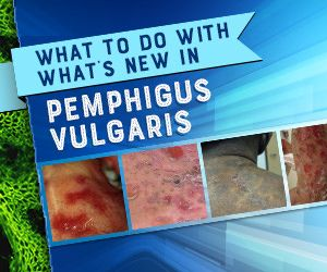 What to do with what's new in pemphigus vulgaris
